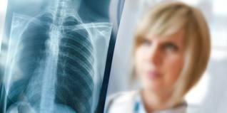 meso x-ray
